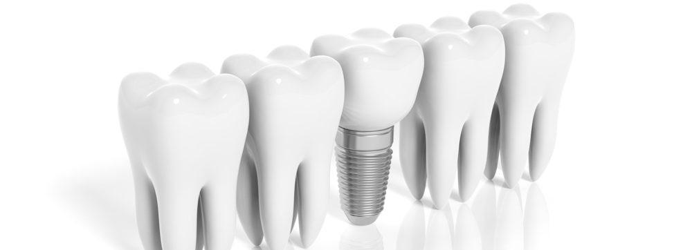 人工歯根を埋入する歯科インプラント治療