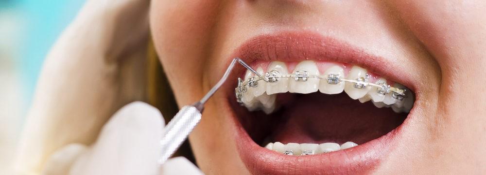茨城県つくば市のつるみ歯科医院では矯正相談に応じています。系列のつるみ矯正歯科と連携