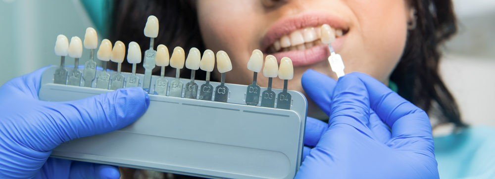 審美歯科治療で歯科医師が歯の色合いを確認